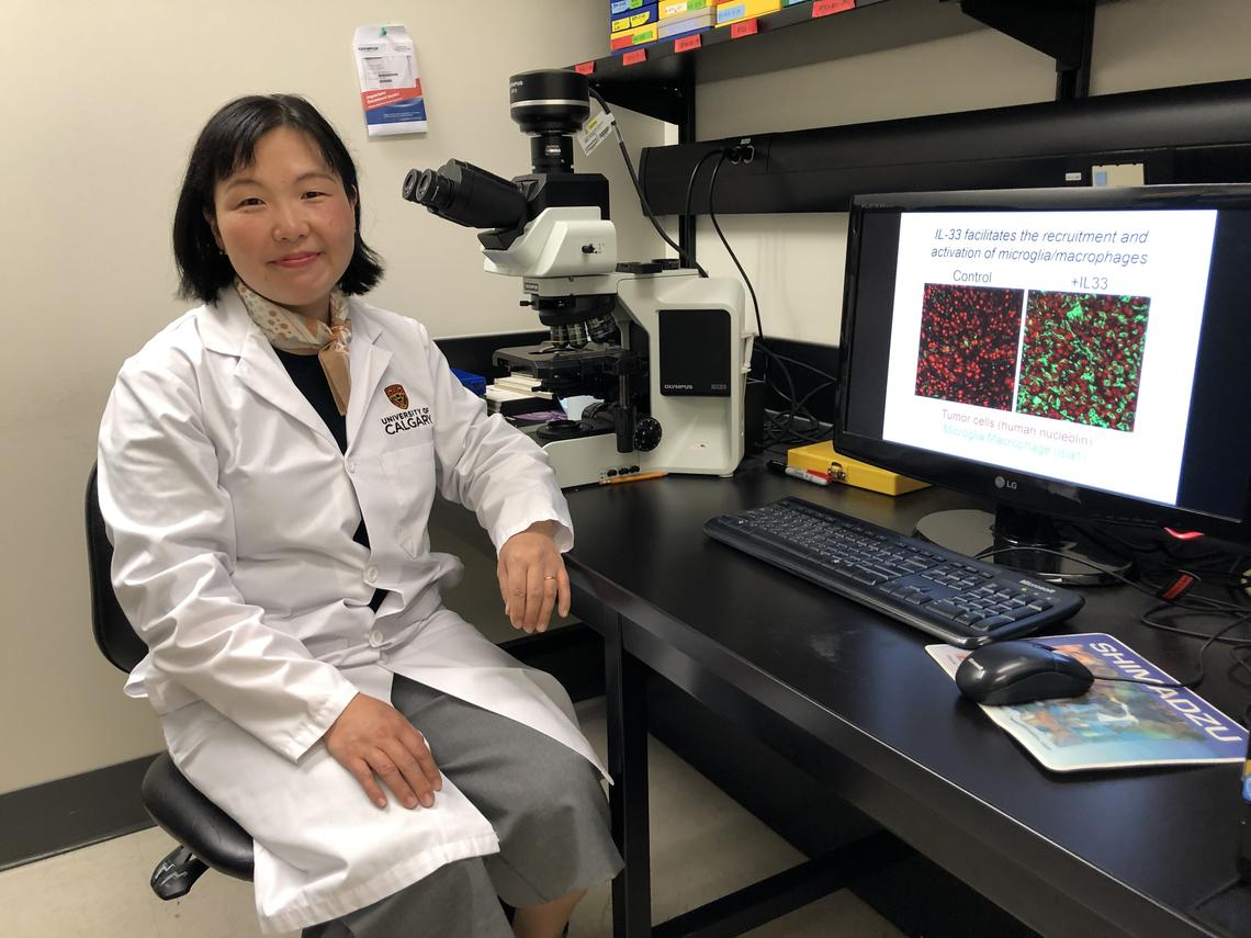 Bo-Young Ahn, PhD, defined a role for IL-33 in glioma progression.