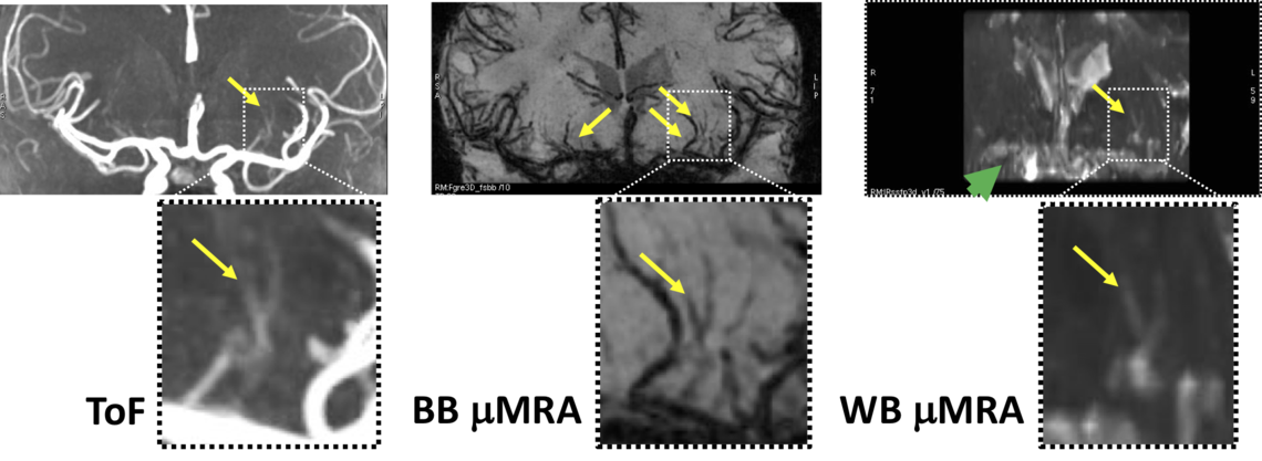 Cerebral Small Vessel Imaging   Cumming School of Medicine ...
