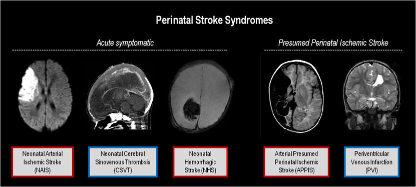 Types of perinatal stroke